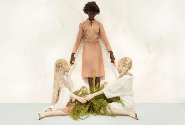 albino models