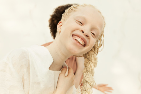 beautiful albinos