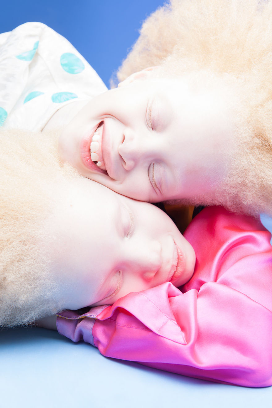 jumelles-albinos-lara-mara-bawar-modeles