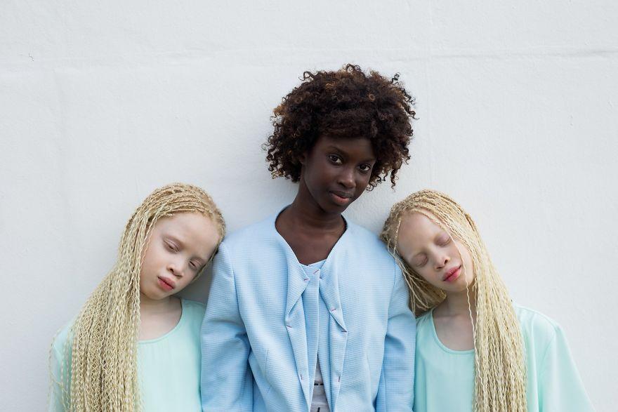 jumelles-albinos-lara-mara-bawar