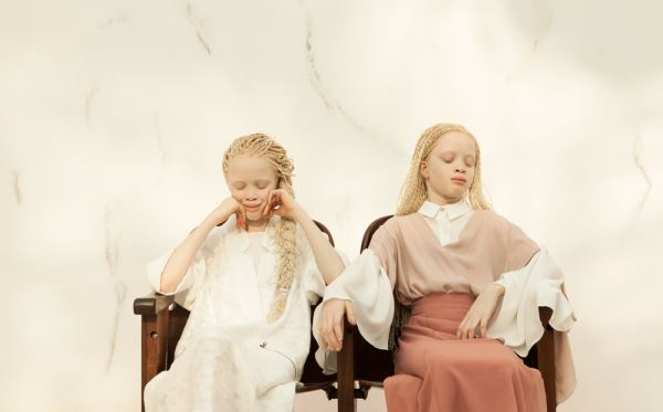 lara et mara albinisme