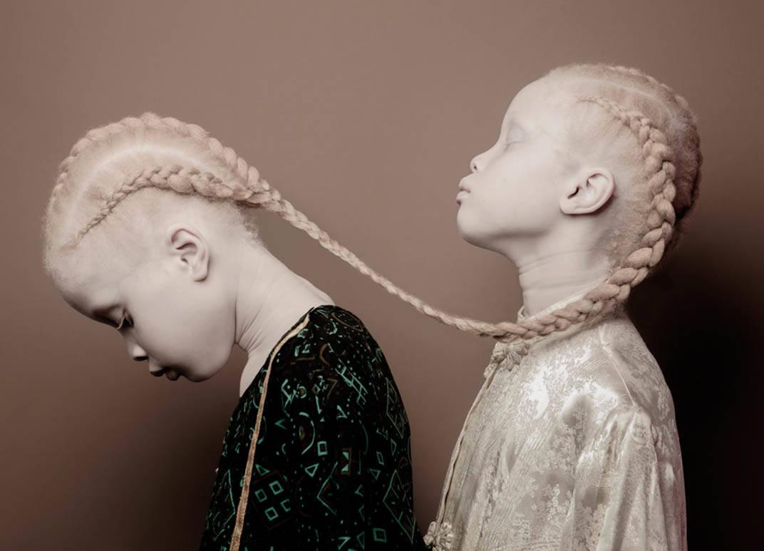 vinicius-terranova-art-albinos twin